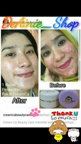 Foto: Cream CA Beauty Care